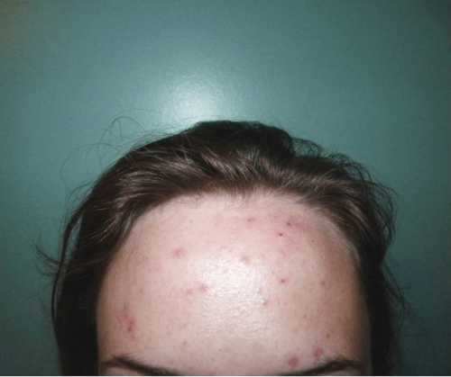Does Proactiv work? Read this Proactiv review and see the before and after pictures before you buy