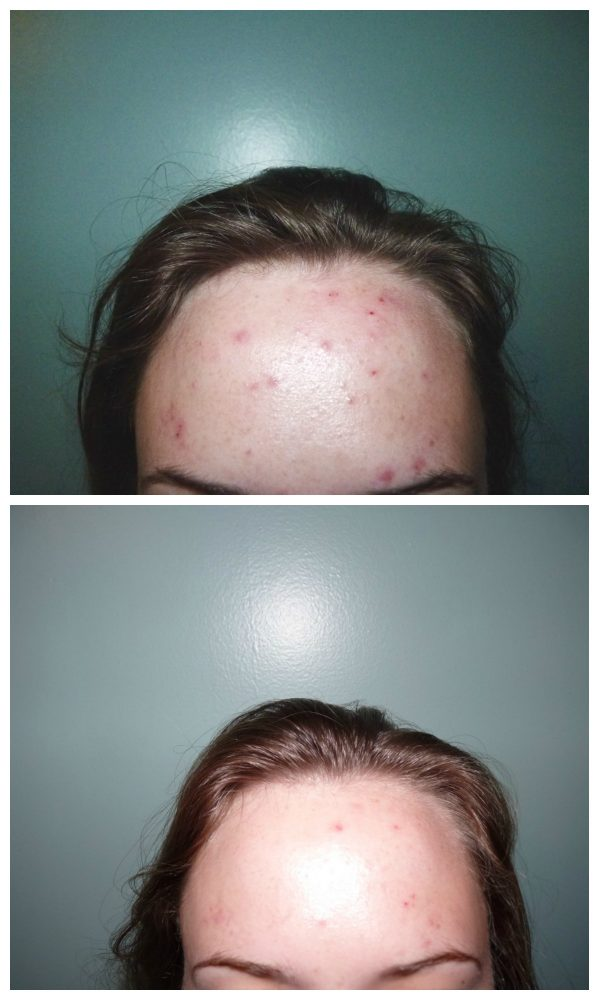 Does Proactiv work? Proactiv before and after pictures plus a word of caution. Read this before you buy Proactiv!